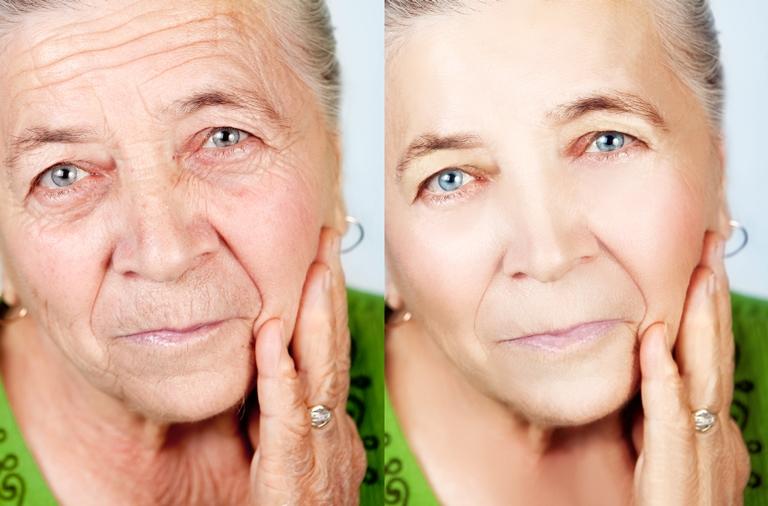 dr emanuel anti - lifting facial